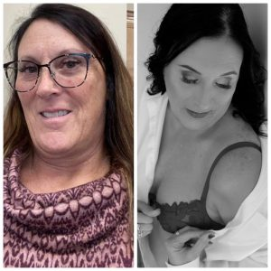 Woman that is 54 years old's before and after